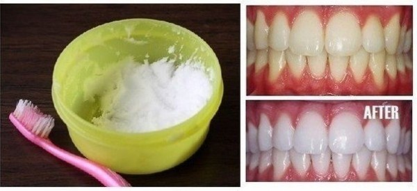 Home Remedy Diy Natural Teeth Whitening